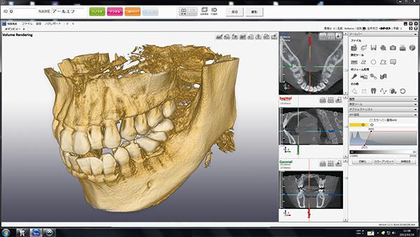 歯科専用CT
